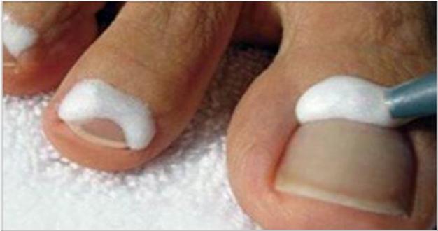 Como curar los hongos de las uñas rápidamente