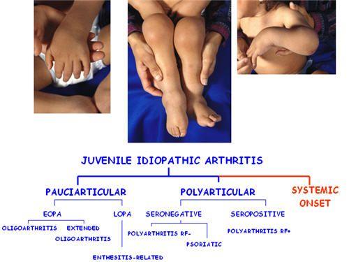juvenile idiopathic arthritis | can help us advance medical, Skeleton