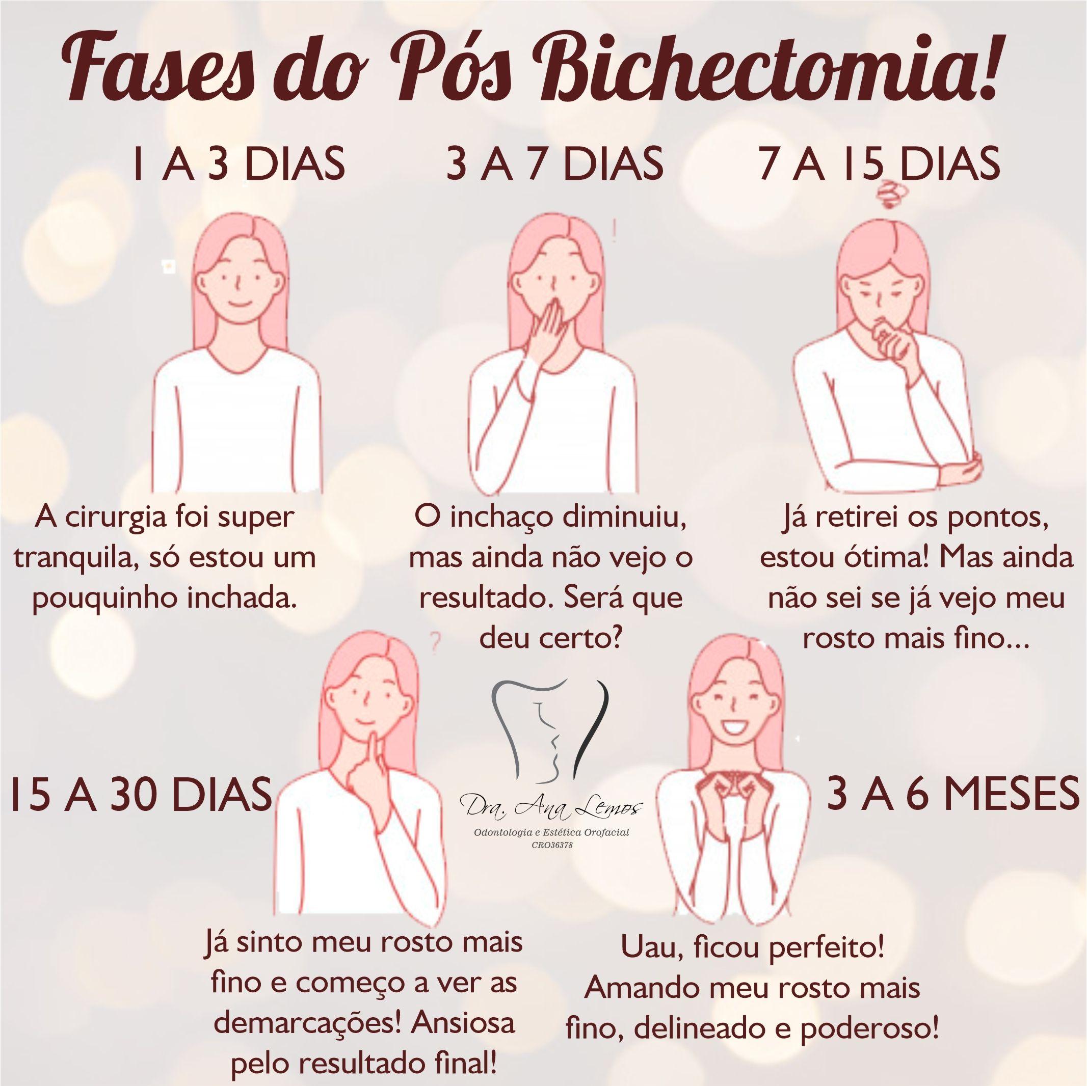 fases do pos bichectomia cirurgia rosto mais fino pos