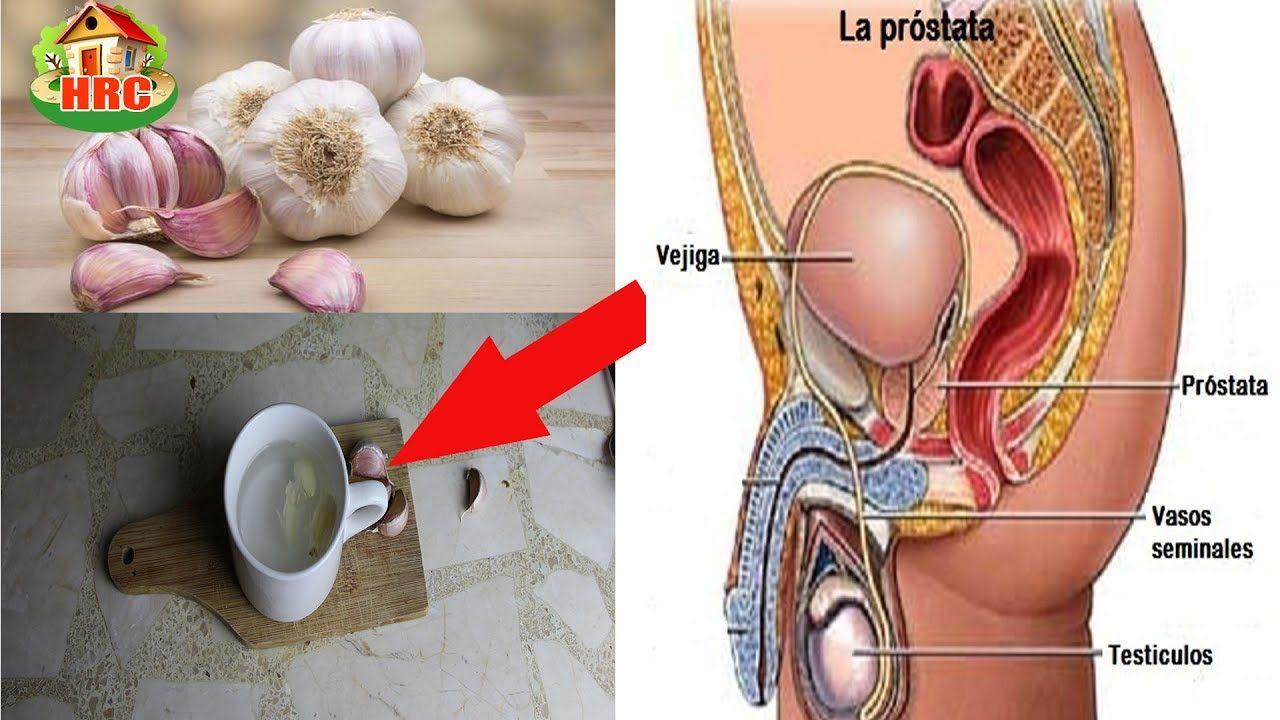 que pasa cuando se inflama la próstata