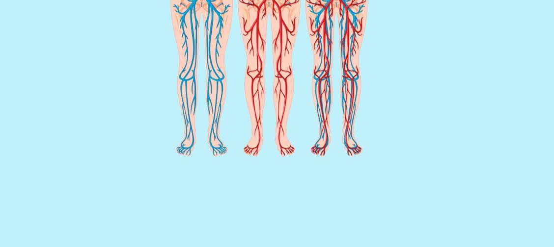 varicoză și musculare