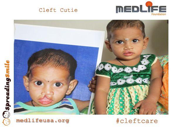 Charity treating facial deformities such