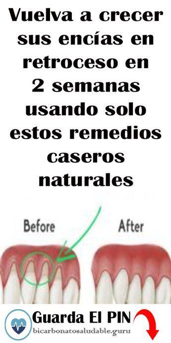 Vuelva A Crecer Sus Encías En Retroceso En 2 Semanas Usando Solo Estos Remedios Caseros Naturales Remedios Caseros Naturales Encías Retraídas Salud Bucal
