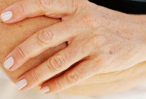 Adult skin problem org