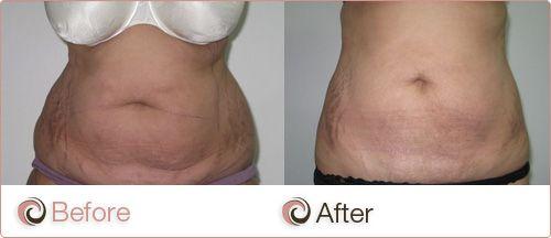 Laser Liposuction Laser Lipo Sydney Canberra Adelaide Smart Lipo Vaser Lipo Tummy Tucks