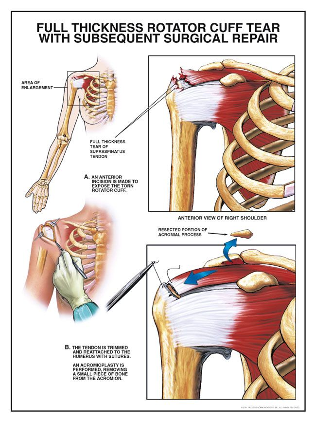 My Story Of Treating A Torn Rotator Cuff Without Surgery Massage