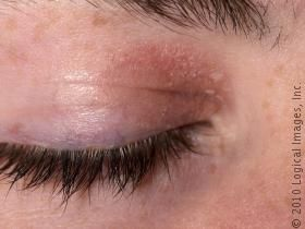 skinsight - Dermatitis, Seborrheic