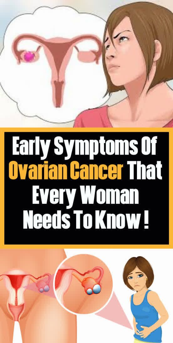 Early Symptoms Of Ovarian Cancer That Every Woman Needs To Know !!!