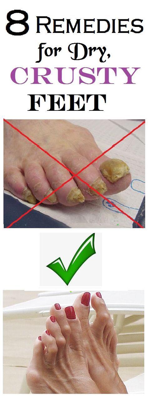 Dry feet remedies, Dry hands