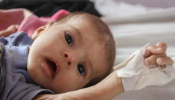 Yemen Tweets And Reports Will Not Feed The Children Children Humanitarian Children And Family