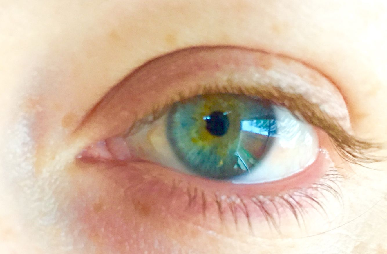 My eye. I have Central Heterochromia.
