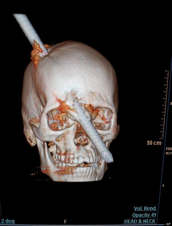 Teaching High School Psychology Another Modern Day Phineas Gage