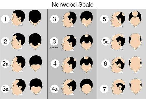Basically The Number Of Grafts Are Calculated On The Basis Of Norwood Scale Of Male Pattern Baldness Choose Norwood Scale Baldness Solutions Balding Remedies