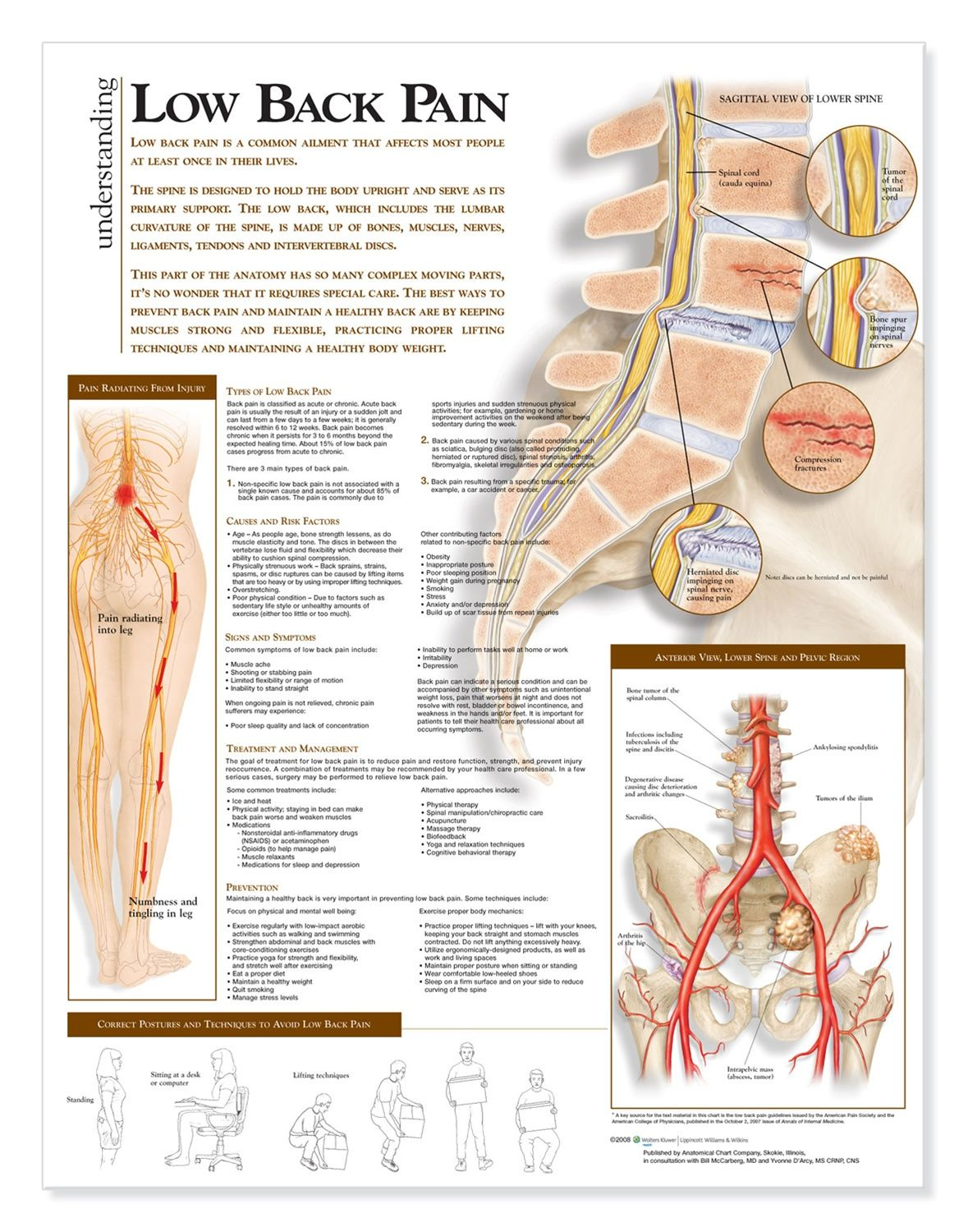 Understanding low back pain anatomical chart anatomy models and charts also rh pinterest