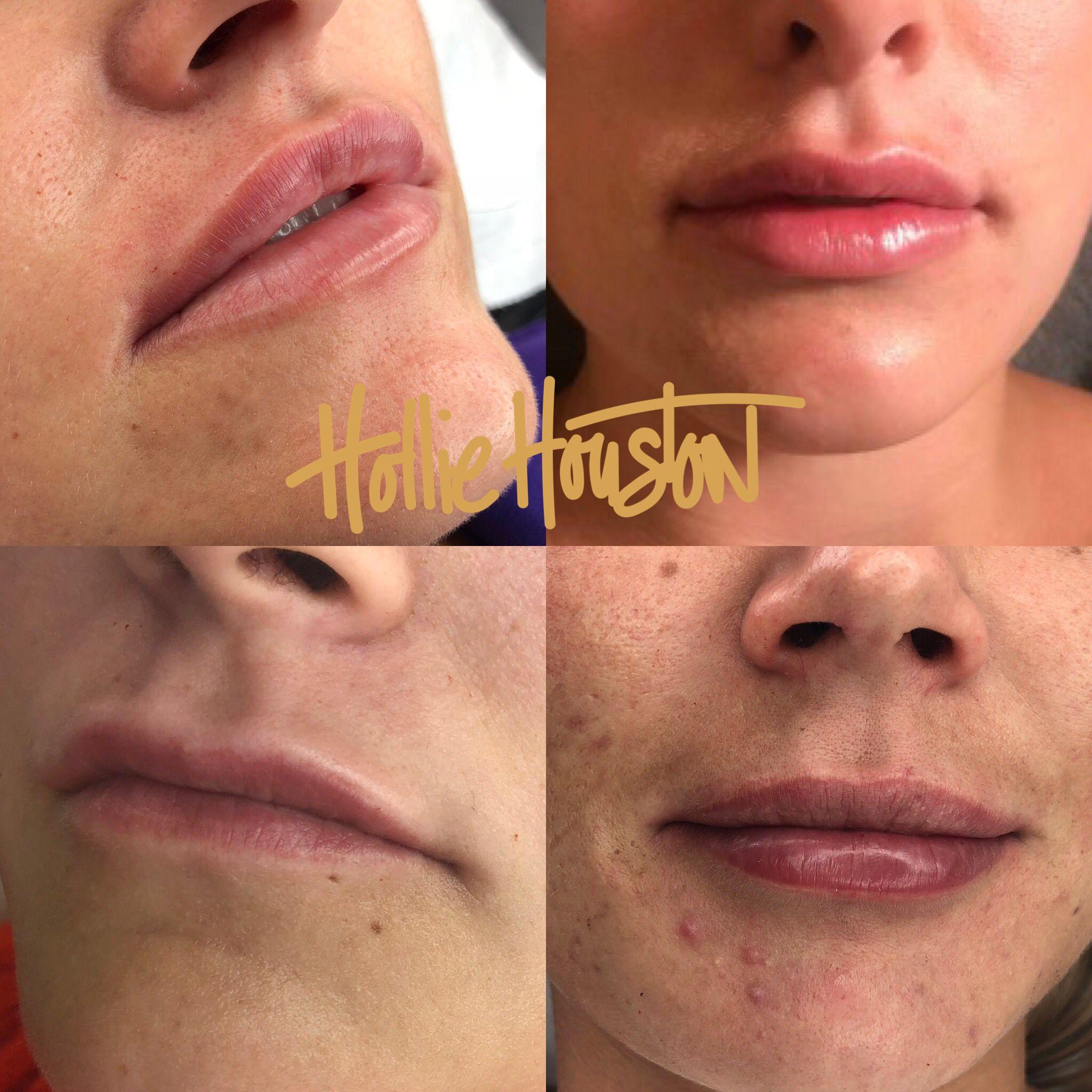 Lip Filler - Juvederm Ultra 3 1ml - Natural Enhancement