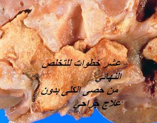 عشر خطوات للتخلص النهائي من حصى الكلى بدون علاج جراحي Food Kidney Stones Meat