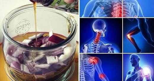 5 rimedi naturali contro i dolori articolari - Rimedi..