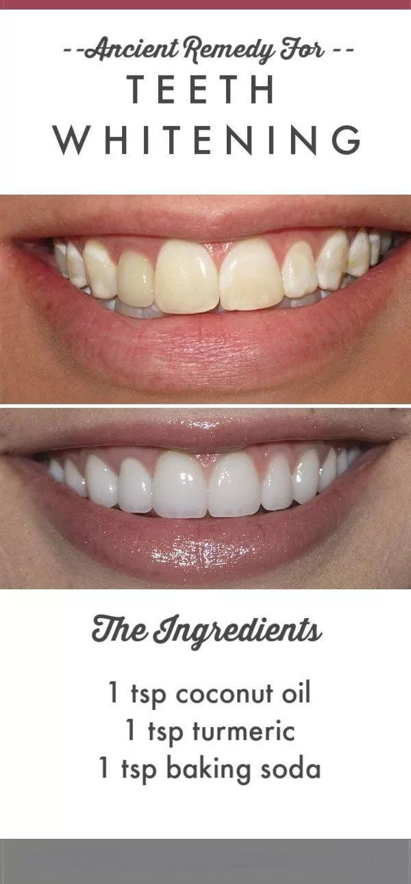 Ancient Remedy for Modern Day Teeth Whitening  Over time our teeth can start to become yellow and dull because of all of the different foods and beverages we eat and drin...