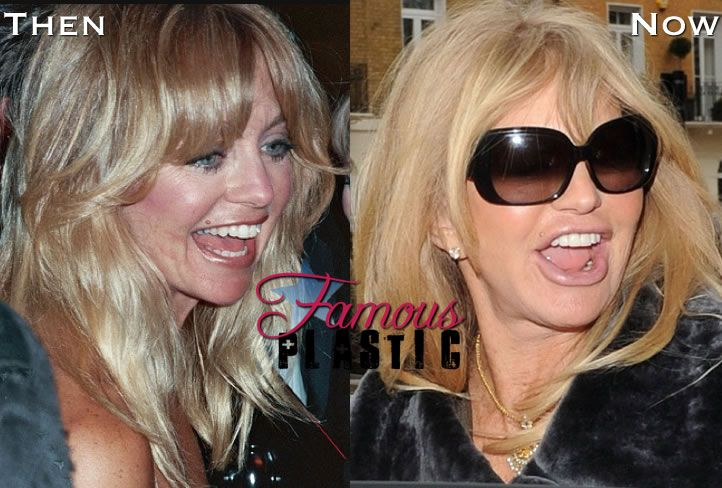 Goldie Hawn Bad Plastic Surgery Fish Lips And Botox Bad