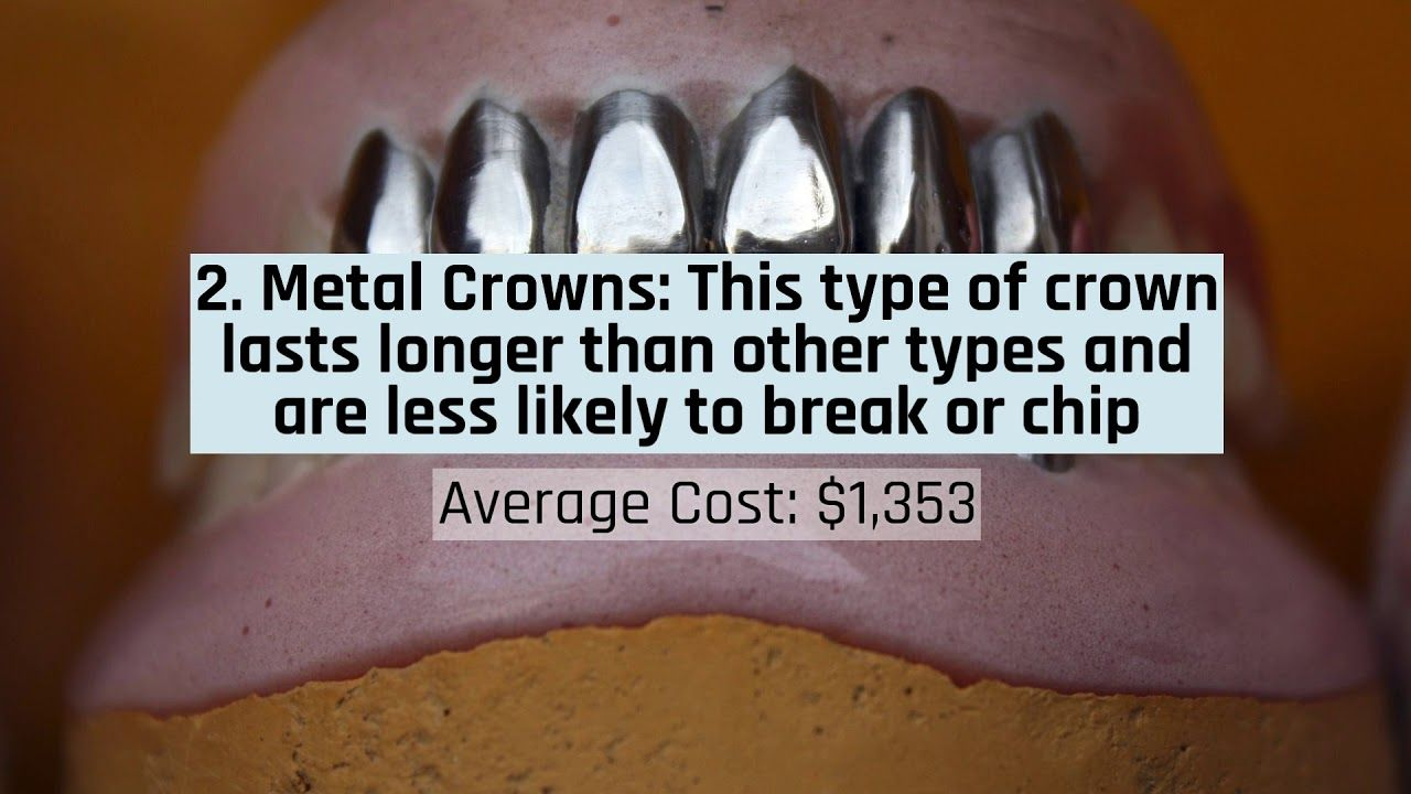 How much do dental crowns cost dental crown cost