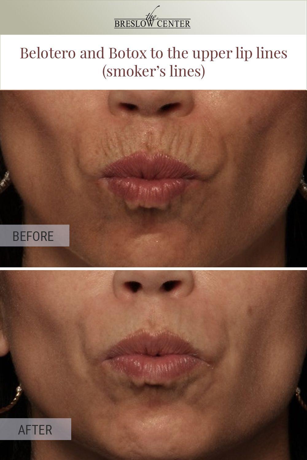883e8fad1bc4279c2bff8091225168ea - How To Get Rid Of Deep Lines On Upper Lip