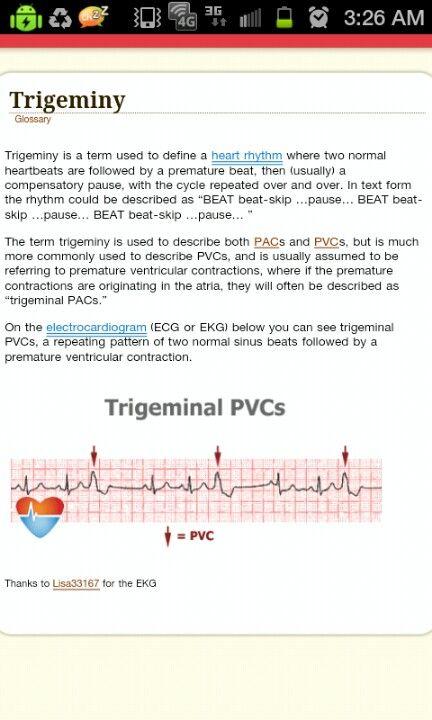 ECG Trigeminy PVC heart rhythm | Nursing notes, Cardiology nursing, Nursing  mnemonics
