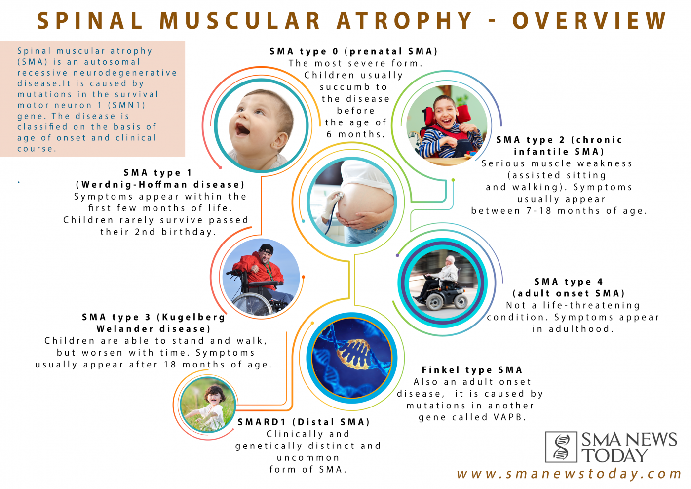 A Look At The Different Types Of Sma Spinal Muscular Atrophy Spinal Muscle Atrophy