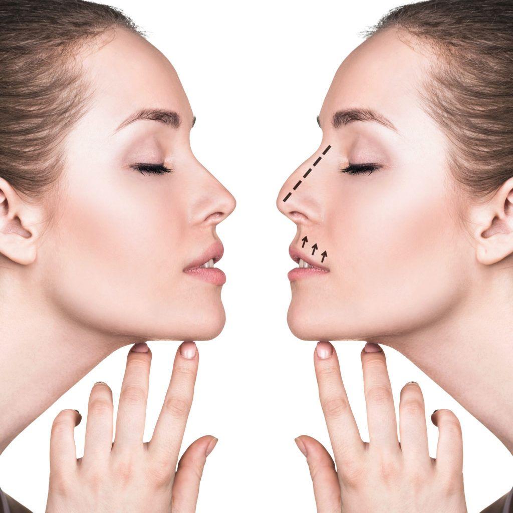 عملية تجميل الانف تهدف إلى تصحيح الشكل الخارجي للأنف أو قد يتم إجراؤها لأسباب طبية كانحراف الوتيرة الأنفية Rhinoplasty Plastic Surgery Aesthetic Dermatology