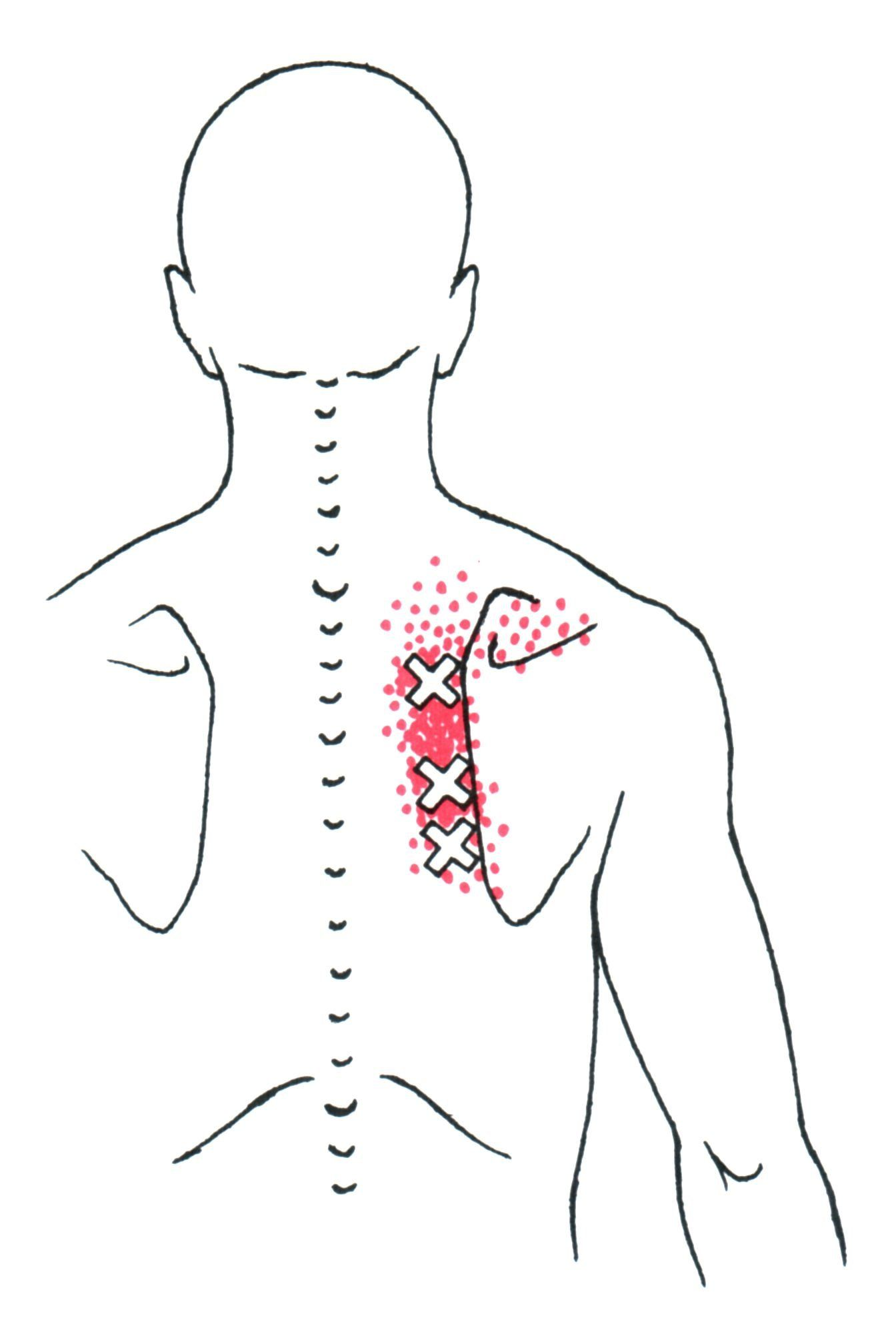 Rhomboid the trigger point referred pain guide the human rhomboid trigger point diagram pain patterns and related medical symptoms the myofascial pain pattern has pain locations that are displayed in red and pooptronica