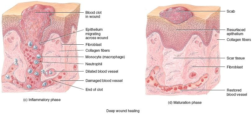 Microrna In Adipose Derived Stem Cells For The Application Of Skin Wound Healing Wound Healing Stem Cells Collagen Fibers