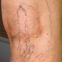 Photo of Varicose veins disappear in 7 days! Simple! Without effort! # Effort #Einfa …