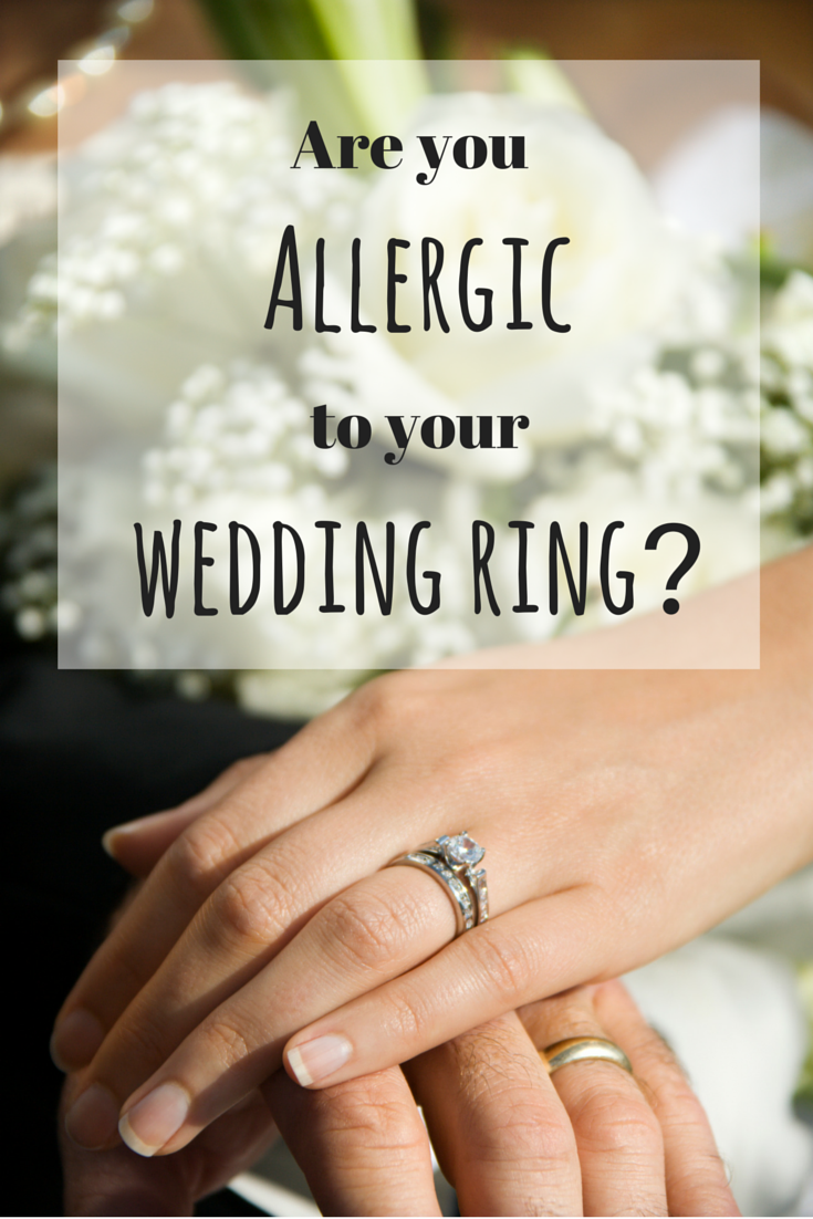 Are You Allergic To Your Wedding Ring Wedding Rings Allergy Treatment Rings