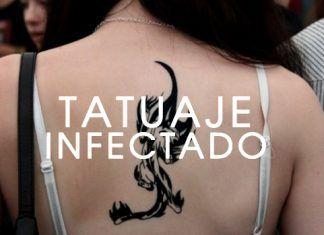 Cómo Saber Si Un Tatuaje Esta Infectado Nunca Lo Ignores Lily
