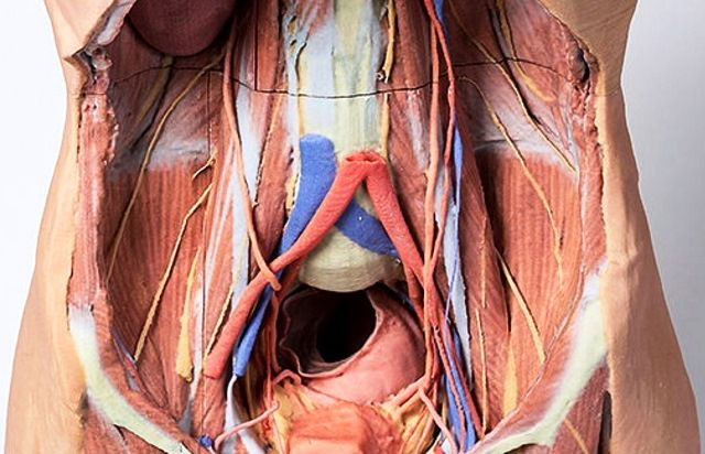 3D Printed Posterior Abdominal Wall Replica | 3D Printed Anatomy ...