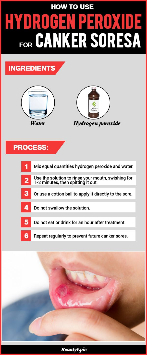 How to Safely Use Hydrogen Peroxide for Canker Sores