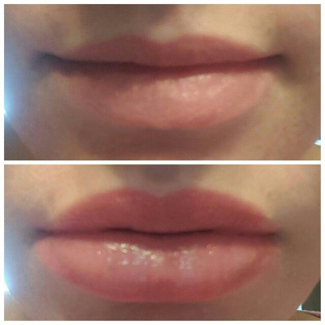Diy lip plumper! 10 drops cinnamon essential oil in a travel
