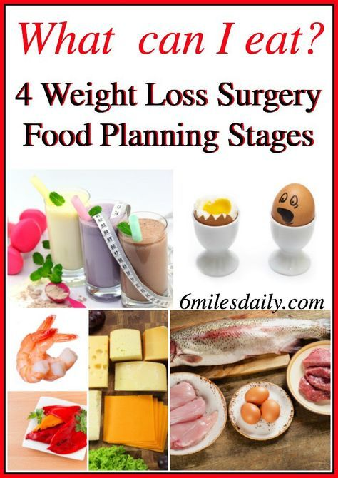 What Can I Eat? 4 WLS Stages Food Planning