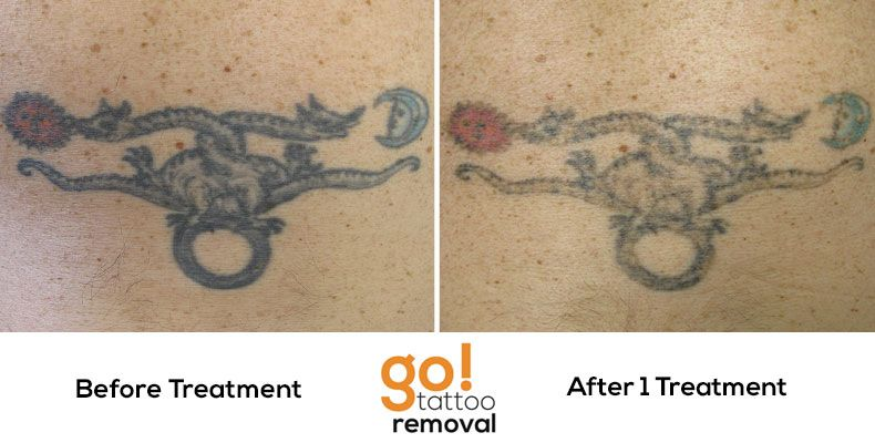 20 years ago the client loved this #tattoo, today, not so much.  Great progress after just one laser tattoo removal treatment.