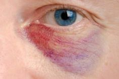 88658d5160cc7c7efefecf20d4376702 - How To Get Rid Of A Black Eye Really Fast