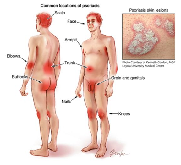 Natural Treatment For Flexural Psoriasis