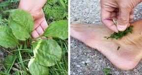 12 metode de a scapa de negi si veruci - tratamente naturiste - InfoCS
