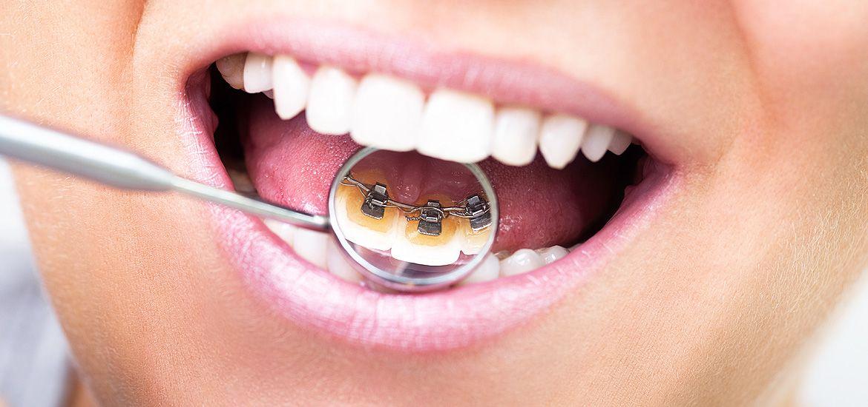Denture repairs denture repairs brisbaneㅣdenture clinic