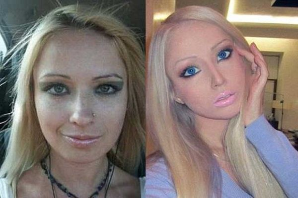 valeria lukyanova before surgery