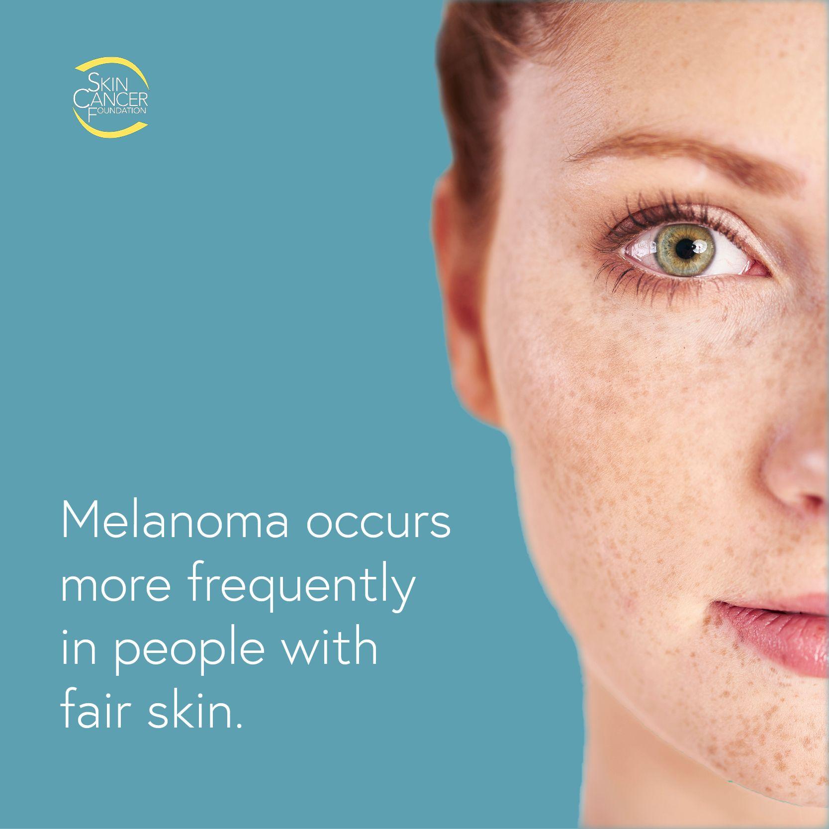 Pin On Skin Cancer Warning Signs
