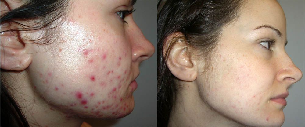 What Is a Chemical Peel and How Does It Work?