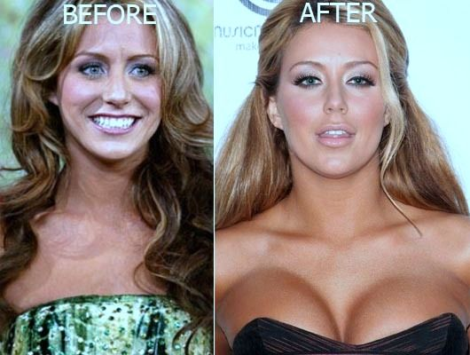 Aubrey O'Day Plastic Surgery Before And After Photos