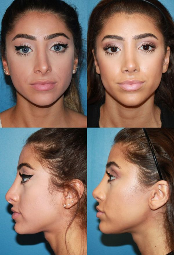 Are You Searching For The Best Rhinoplasty Surgeon In San Diego Dr Paul Chasan Is Skilled At Offering Nose Rhinoplasty Before And After Nose Job Nose Surgery