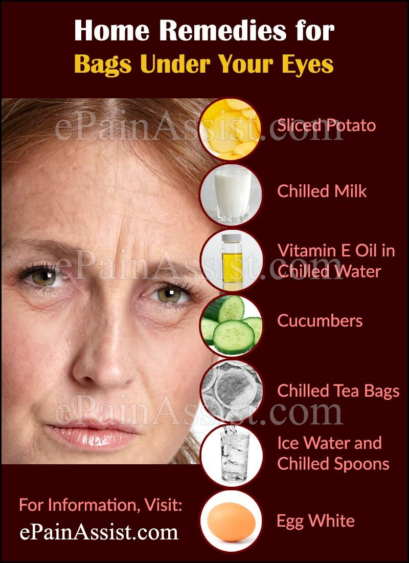 888b4a0cff4a96efd86be8d747b560d2 - How To Get Rid Of Headache Caused By Antibiotics