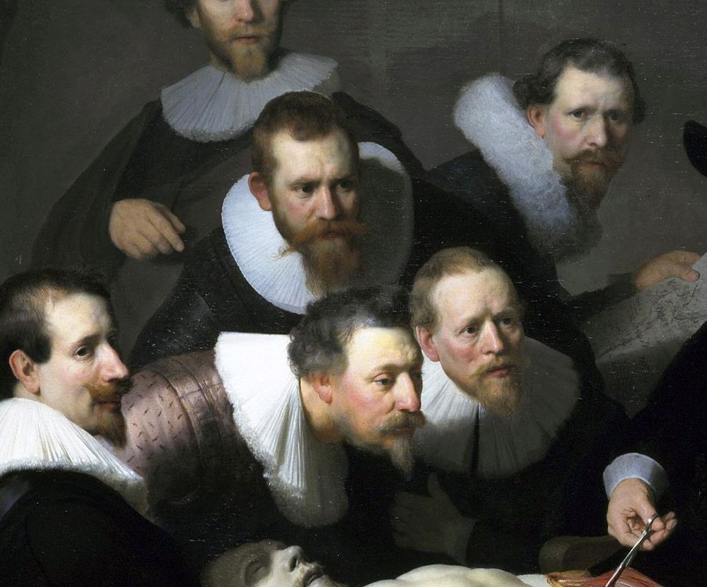 Rembrandt van Rijn - The Anatomy Lesson of Dr. Nicolaes Tulp (1632 ...