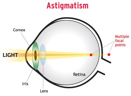 Intraocular Lens   Astigmatism, Contact lenses for ...